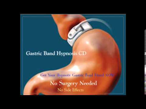 No Surgery Gastric Band Hypnosis Youtube