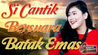 didia ho nuaeng felicia hutahaean cipt edison sibuea suara batak emas lagu populer