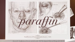 History of Cosmetic Fillers: Paraffin