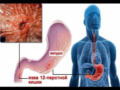 Язва желудка, симптомы и лечение язвы