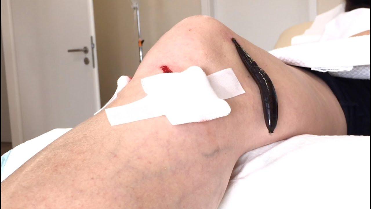 So läuft eine Blutegel-Therapie ab - YouTube