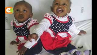 Conjoined twins meet for the first time after historic surgery