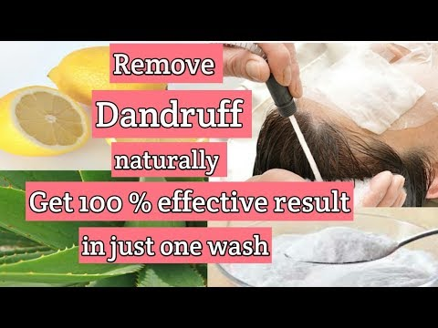how-to-get-rid-of-dandruff?|quick-and-easy-home-remedies-for-dandruff|-in-hindi