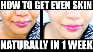 How Get Clear Skin Even Skin Tone Naturally Week