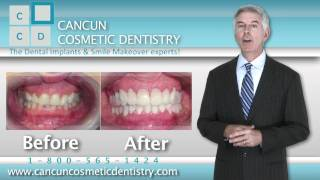 Cancun Cosmetic Dentistry Thumbnail