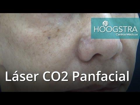 Láser CO2 Panfacial (17009)