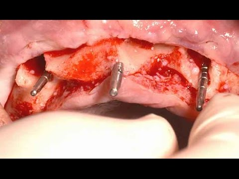 Full mouth implantation with simple guided procedure on edentulous maxilla (Live)