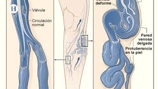 Fatiga pueden causar venas las varicosas