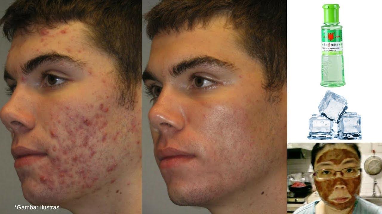 7 Cara Menghilangkan Jerawat Dalam Satu Hari How To Get Rid Of Pimples Youtube