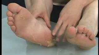 видео Лучшие средства для ухода за ступнями ног