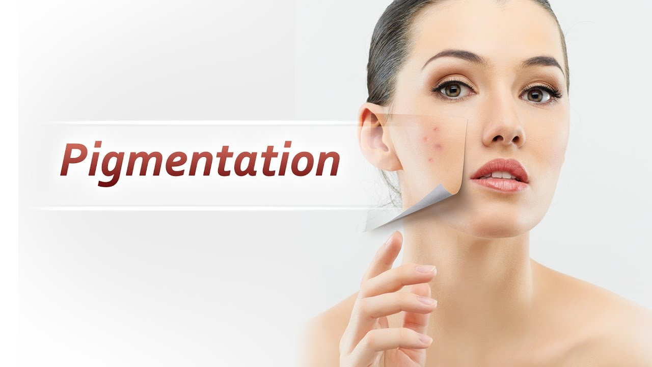 Image result for skin pigmentation