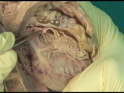 1.13 Step 12. Submandibular ganglion: innervation of the sublingual ...