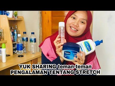 Caraku Menghilangkan Stretch Mark | Hasil Permanen, You Must Try !.