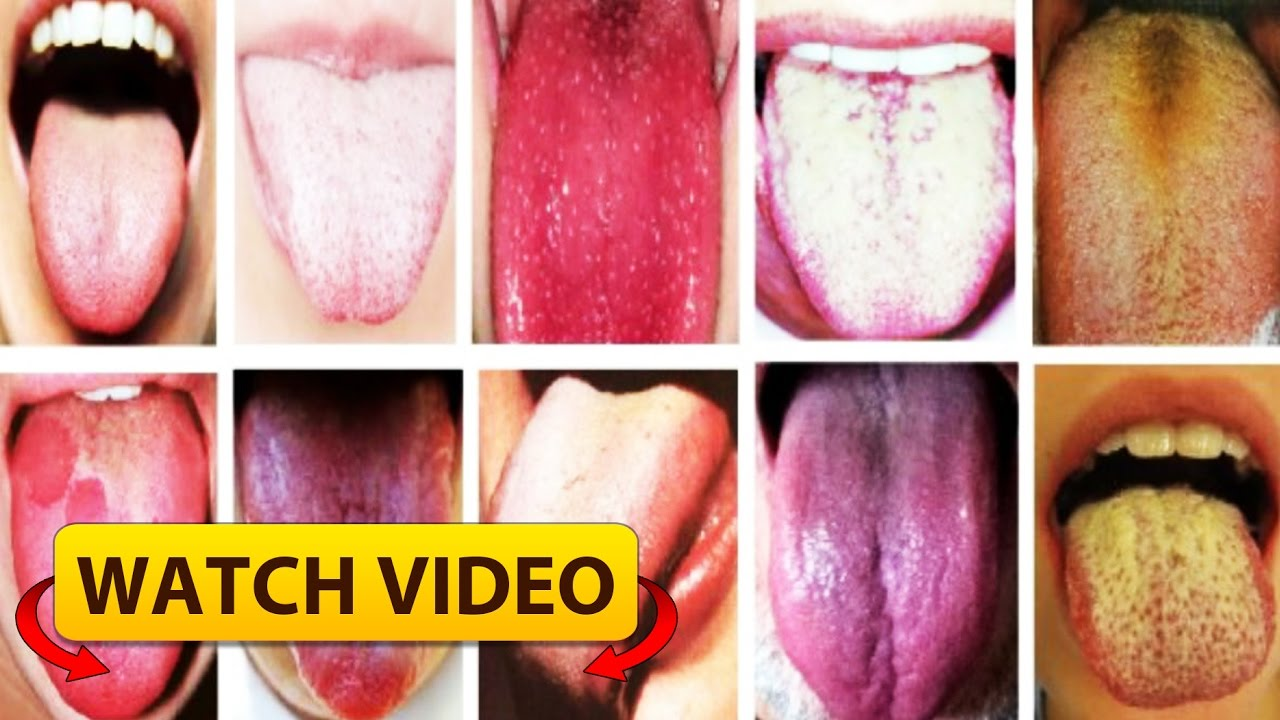 How The Colour Of Your Tongue Reveals Health
