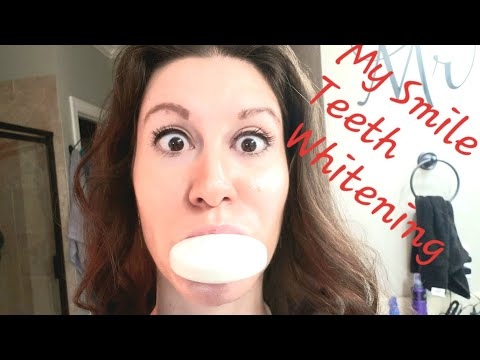 My Smile Teeth Whitening Review