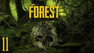 TODO LISTO PARA LA LUCHA - THE FOREST - EP 11