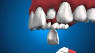 винир, накладка на зуб(винир, накладка на зуб., 2012-01-25T13:52:56.000Z)