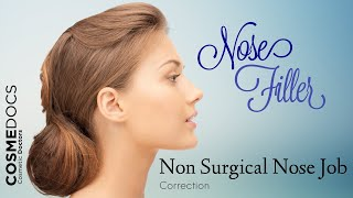 Non Surgical Nose Job - Mini Rhinoplasty Using Dermal Filler Injections - London Thumbnail