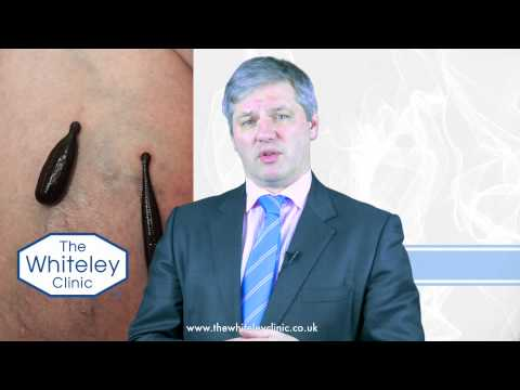 Use of leeches in Eastern Europe to treat Varicose Veins