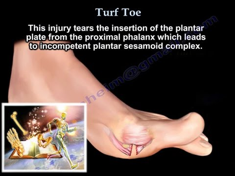 Turf toe big toe pain everything you need to know dr nabil turf toe big toe pain everything you need to know dr nabil ebraheim youtube publicscrutiny Image collections