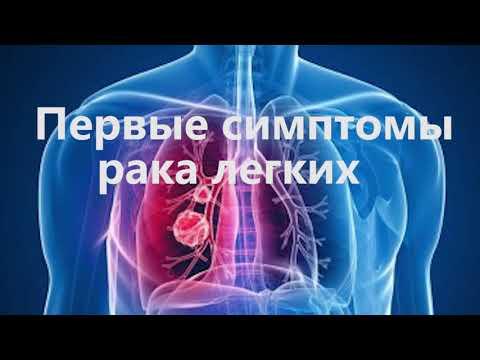 Названы первые симптомы рака легких
