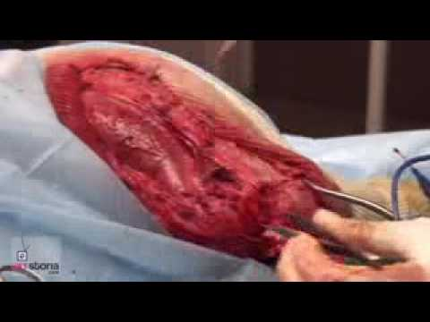 Cruciate Ligament Rupture In Dogs 2  Surgical Repair