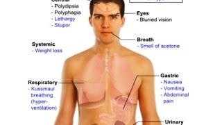 Заболевание сахарный диабет, диета при диабете, причины возникновения