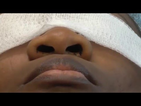AFRICAN AMERICAN RHINOPLASTY - DR. TANVEER JANJUA - NEW JERSEY