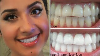 My Oral Hygiene + How I Keep a White Smile | Dulce Candy