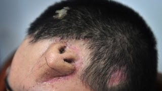 CHINA MAN GROWS A NOSE ON HIS FOREHEAD BBC NEWS