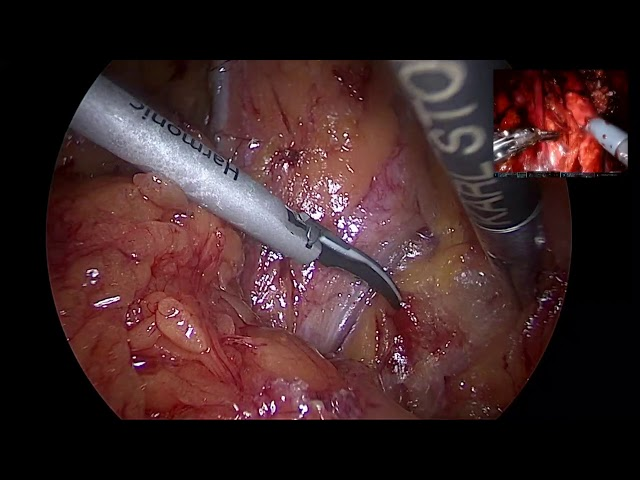Miguel Ramirez Backhaus - Laparoscopic Prostatectomy with ICG
