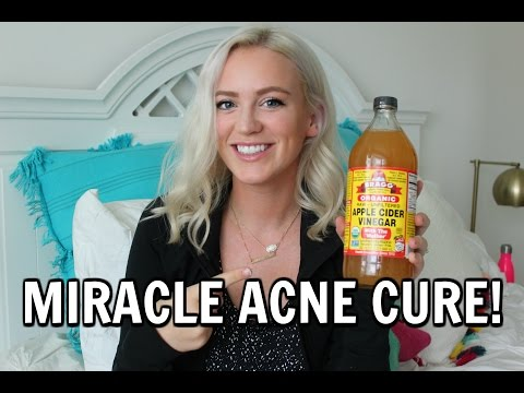 miracle-acne-cure---apple-cider-vinegar-❤