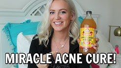 hqdefault - Did Apple Cider Vinegar Work For Acne