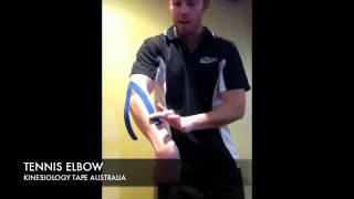 K taping for Tennis elbow.avi