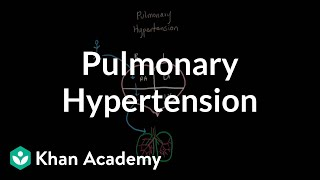 What is pulmonary hypertension? | Respiratory system diseases | NCLEX-RN | Khan Academy
