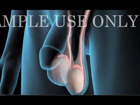 Medical Animation: Testicular Cancer