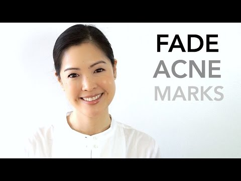 How To Fade Acne Scars Pie Vs Pih Youtube