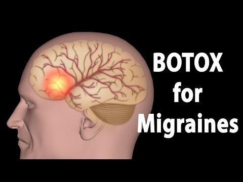 BOTOX for Migraines, Animation.