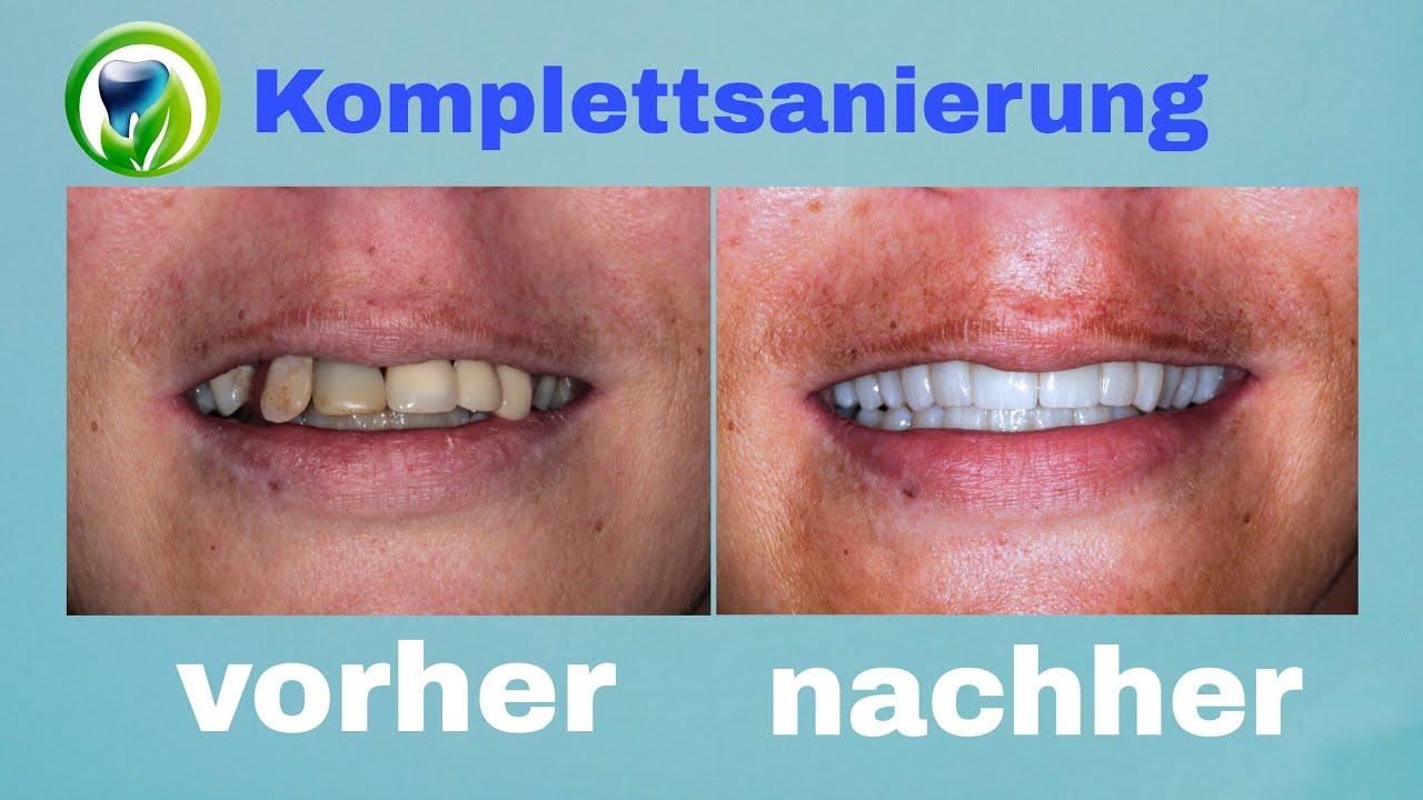Nachher zahnfleischtransplantation vorher Damals und