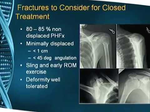Proximal Humerus fracture: AO lecture