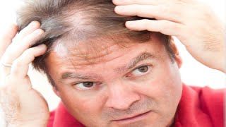 How to Regrow Hair in Thinning Areas