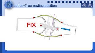 칼텐본 신장견인관절가동술(Stretch traction…