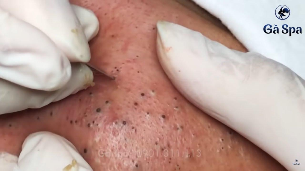 Best Blackhead Removal Ever 55min - Facial Acne Treatment - Gà Spa