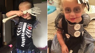 3-Year-Old Amputee Wears Halloween Costumes That Embrace Her Missing Arm thumbnail