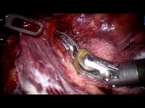 Robotic Right Middle Lobectomy With a Subxiphoid Utility Port