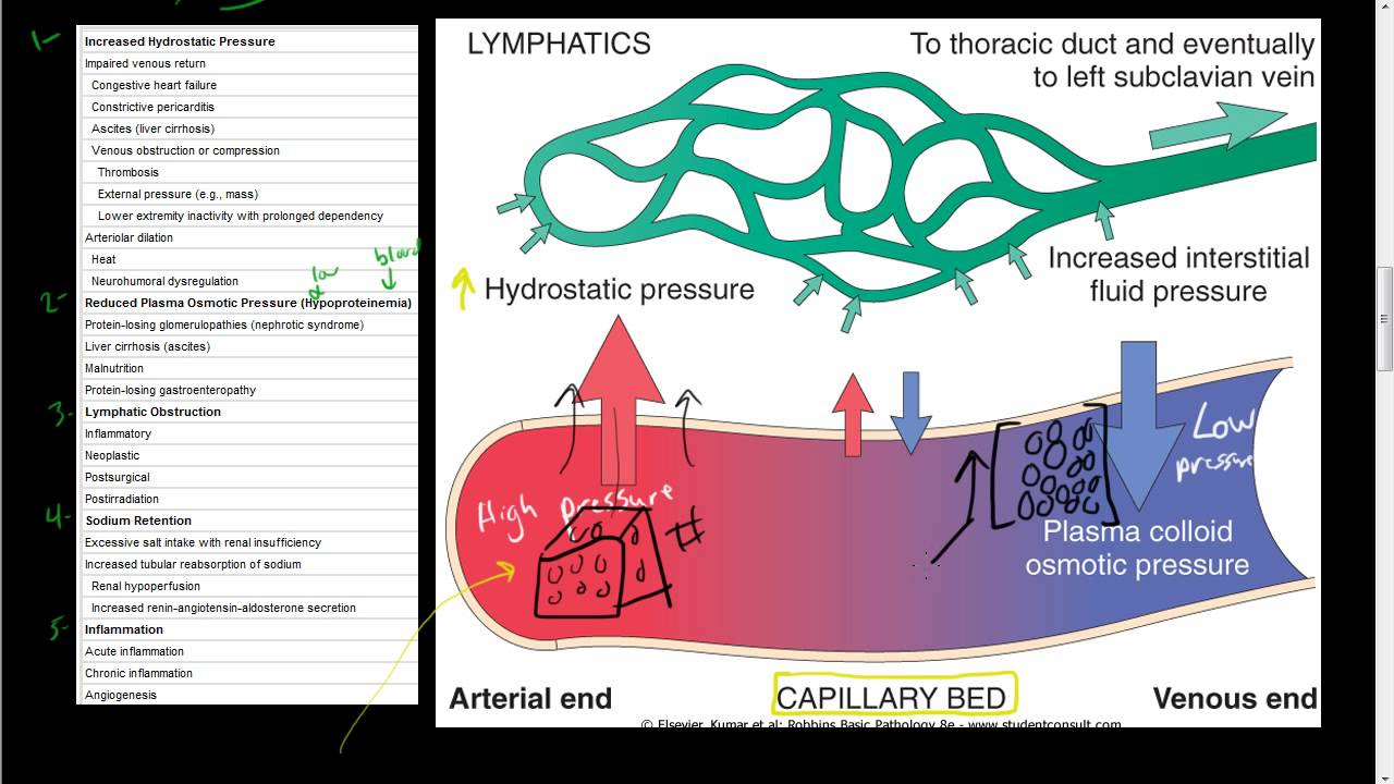 43 Hemodynamic Disorders Edema Lymphatics Disorders