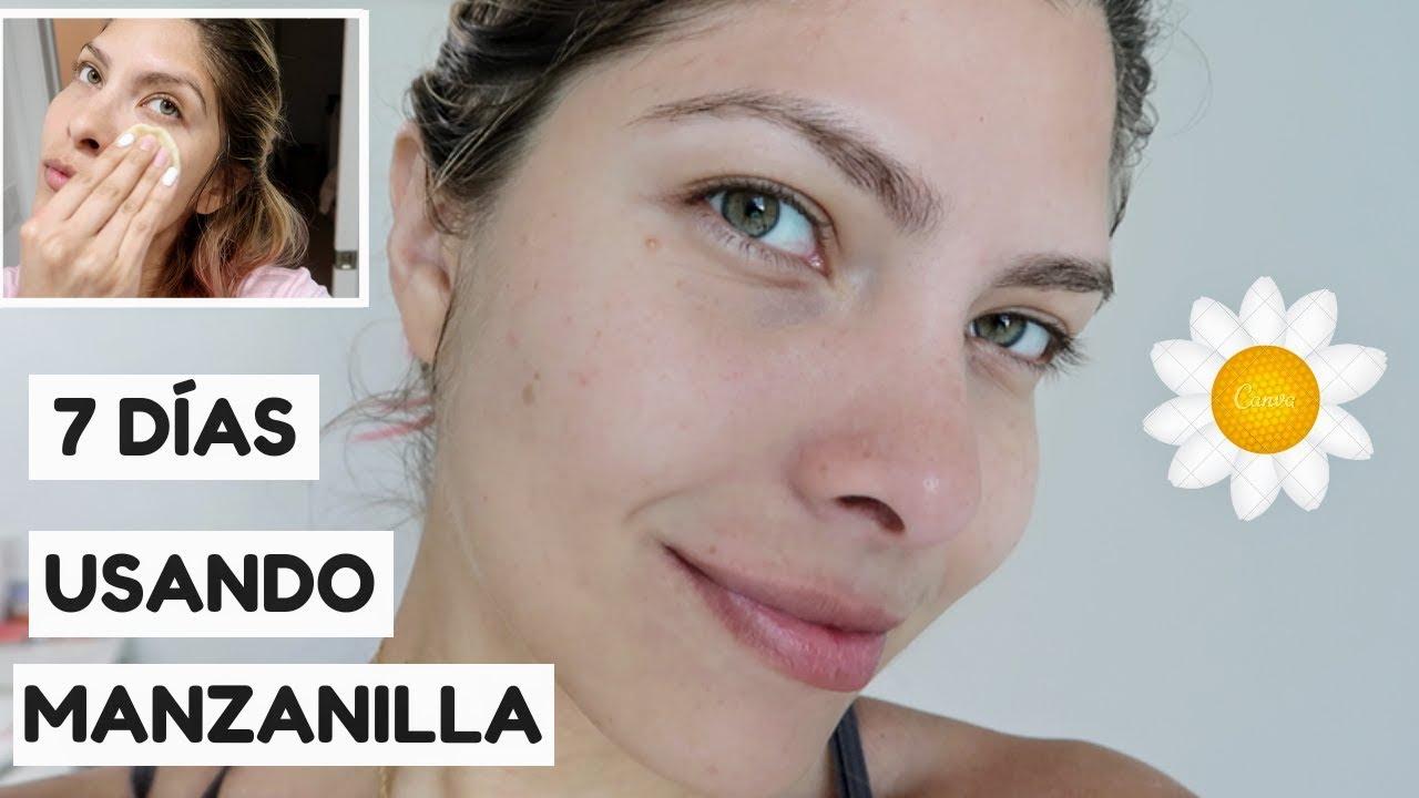 manzanilla para desinflamar la piel