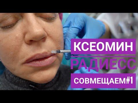 Совмещаем ботулотоксин (Ксеомин) и инъекции Радиесс. Часть 1-я