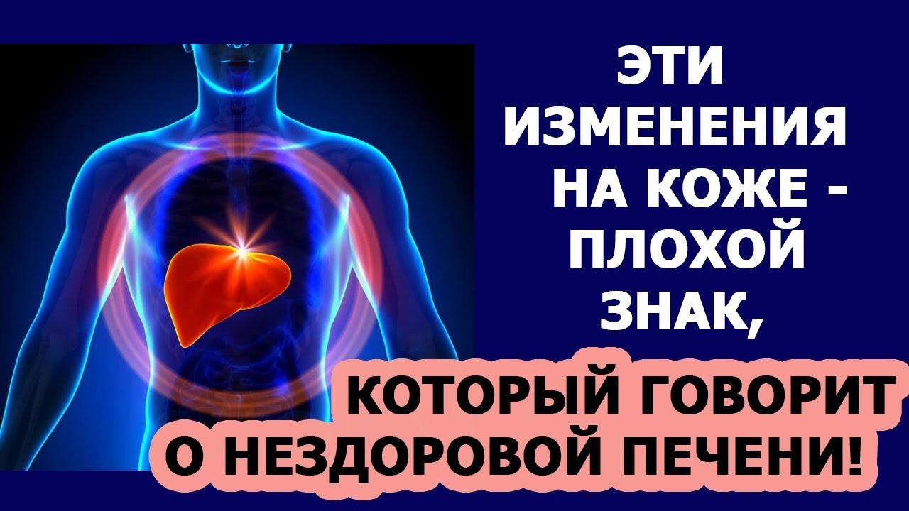 Здоровье человека Печень Эти изменения на коже говорят о нездоровой печени