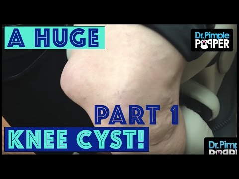 Thumbnail: Dr. Pimple Popper's Madness CHAMPION! | Cyst - Part 1